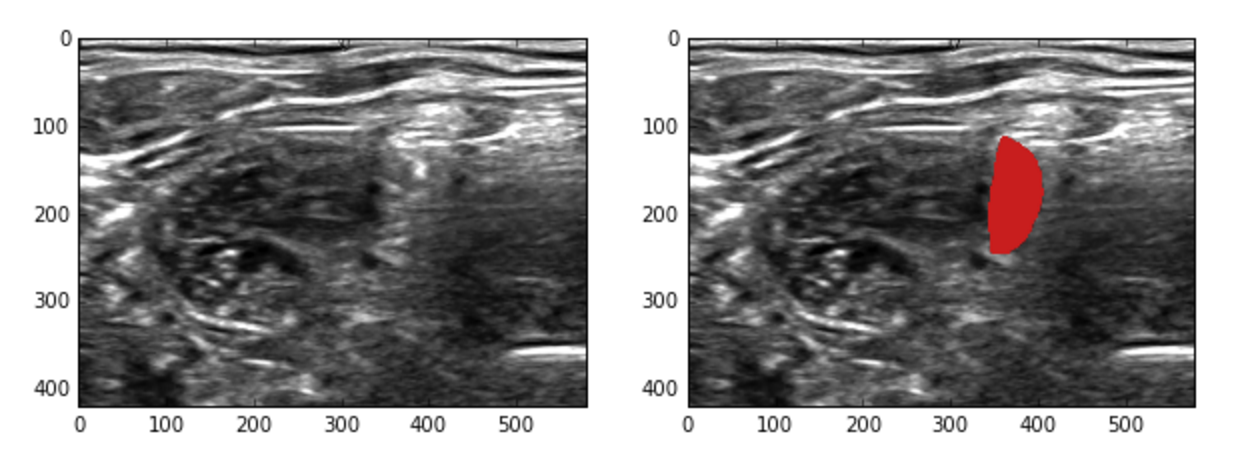 fhtagn net : Kaggle Ultrasound Nerve Segmentation (25th with